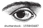 suture of the conjunctiva after ... | Shutterstock .eps vector #155843687