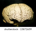 preserved real human brain | Shutterstock . vector #15872659