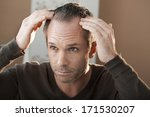 hair loss | Shutterstock . vector #171530207