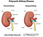 poly cystic kidney disease  | Shutterstock .eps vector #179032277