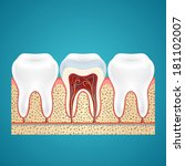 two healthy human tooth and one ... | Shutterstock .eps vector #181102007