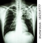 Small photo of film chest x-ray show alveolar infiltrate at left upper lung due to Mycobacterium tuberculosis infection (Pulmonary Tuberculosis)