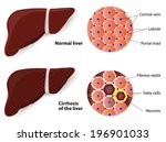 anatomía,arteria,celular,crónica,cirrosis,desintoxicación,diagrama,digestión,digestivo,enfermedad,conducto,enzima,grasa,graso,cuidado de la salud