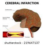 brain stroke. cerebral...   Shutterstock . vector #219647137