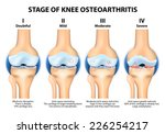 stages of knee osteoarthritis ... | Shutterstock . vector #226254217