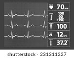 Modern Electrocardiogram...