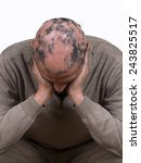 Small photo of Alopecia