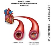 normal artery and unhealthy... | Shutterstock .eps vector #265861697