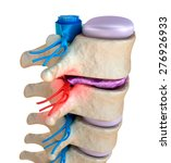 Spinal Cord Under Pressure Of...