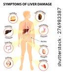 symptoms of liver damage. human ... | Shutterstock .eps vector #276983387