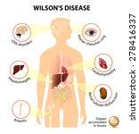 wilsons disease or...