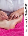 Small photo of Acupuncturist prepares to tap needle on the foot of a man