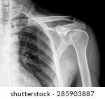 X Ray Film Of Shoulder