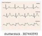 Heart Cardiogram Waves. Three...