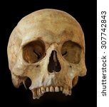 Human Skull  Isolated On Black...