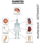 diabetes complications affected ...   Shutterstock .eps vector #337044437