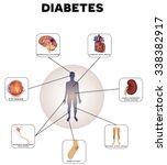 diabetes complications detailed ... | Shutterstock .eps vector #338382917