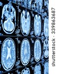 closeup of a ct scan with brain   Shutterstock . vector #339863687
