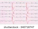 emergency cardiology. tape ecg... | Shutterstock . vector #340718747