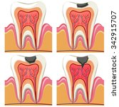 tooth decay diagram in details... | Shutterstock .eps vector #342915707
