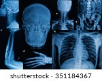 collection of  x ray   multiple ... | Shutterstock . vector #351184367