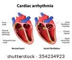 cardiac arrhythmia. cardiac... | Shutterstock .eps vector #354234923