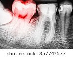 Pain Of Tooth Decay On Teeth X...