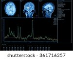 imaging of the brain on x ray | Shutterstock . vector #361716257