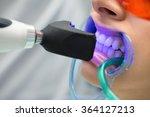 tooth filling ultraviolet lamp   Shutterstock . vector #364127213