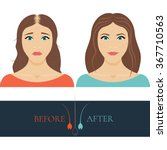 woman with alopecia before and... | Shutterstock .eps vector #367710563