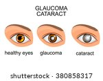 illustration of a healthy eye ... | Shutterstock .eps vector #380858317