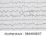 abnormal eeg brain wave on... | Shutterstock . vector #386404837
