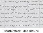 abnormal eeg brain wave on... | Shutterstock . vector #386406073