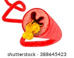 artery blocked with cholesterol | Shutterstock . vector #388645423