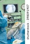 Small photo of Arthroscopic ACL reconstruction