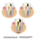 the stages of caries development | Shutterstock .eps vector #400566997