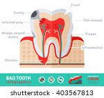 Bad Tooth Anatomy Flat Icon...