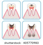 progression of tooth decay | Shutterstock . vector #405770983