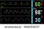 patient monitor displays vital... | Shutterstock . vector #406054057