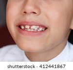 little boy with crooked teeth | Shutterstock . vector #412441867