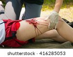 person with serious leg injury  ... | Shutterstock . vector #416285053