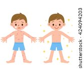 boy with and without dermatitis   Shutterstock .eps vector #424094203