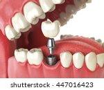 Tooth Human Implant. Dental...