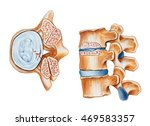 spinal stenosis.showing... | Shutterstock . vector #469583357