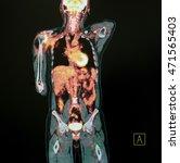 Stock photo pet scan of body anterior posterior view 471565403