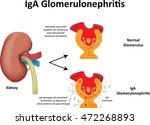iga glomerulonephritis...