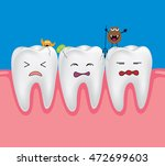 tooth with bacteria. dental...   Shutterstock .eps vector #472699603