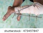 fracture left leg. post... | Shutterstock . vector #473457847