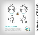 augmentation breast surgery... | Shutterstock .eps vector #474036043
