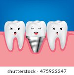 dental implant and normal tooth ... | Shutterstock .eps vector #475923247